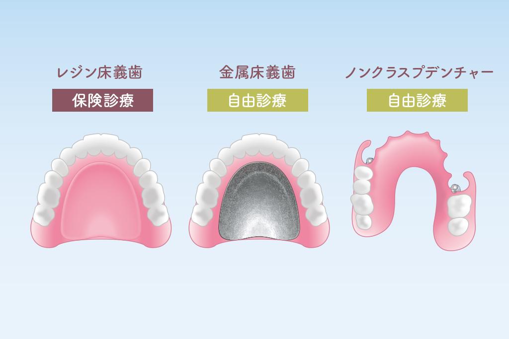 さまざまな種類の入れ歯